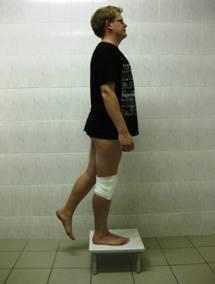 Лфк после артроскопии коленного сустава