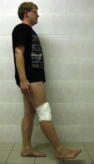 упражнения после артроскопии мениска коленного сустава